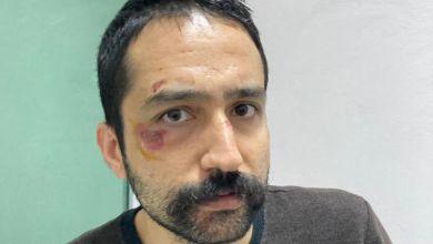 Photo of Avukat Aytaç Ünsal'a işkence